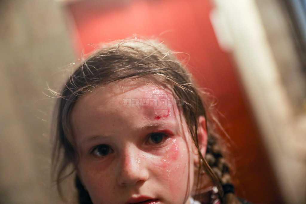 אחת הילדות שנפצעו