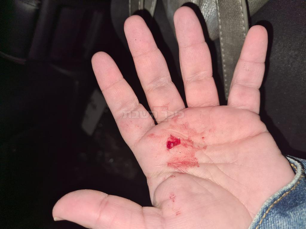 ידו הפצועה של אחד השוטרים (צילום: דוברות המשטרה)