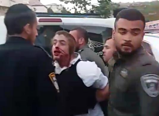 מקומם: נסגר התיק לשוטרים שהיכו את ינקי - כיכר השבת