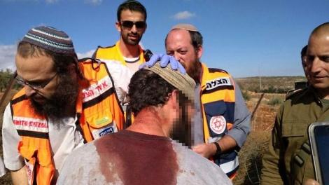 הישראלי שנפצע בתקרית (מתוך Ynet)