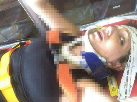 בריינדי טרייטל לאחר התאונה (צילום: פייסבוק)