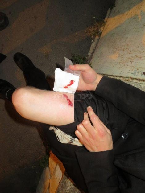 אחד הפצועים בהפגנה