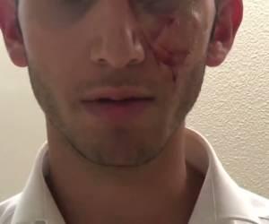 מלחמת אחים: פעיל 'עץ': פעילי 'דגל' תקפו אותי באלימות