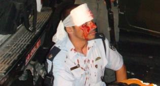 שוטר פצוע בזירה אמש. צילום: כיכר השבת