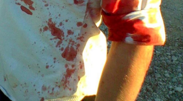 אחד הפצועים (צילום: ועד מתיישבי שומרון)