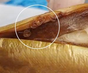 בתוך הדגים, בכשרות המהודרת: תולעי אניסקיס