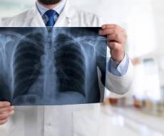 דלקת ריאות, חיסונים וכל מה שביניהם