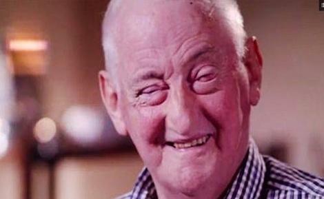 ג'ון אינגס - מדהים: הקשיש בן ה-72 חזר לראות בזכות השן שלו