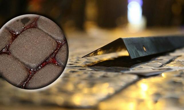 המוט ושלולית הדם