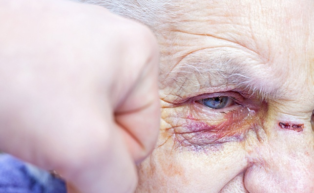 קשיש מותקף, אילוסטרציה