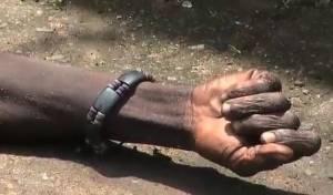 """תיעוד מפחיד: ה""""מת"""" הזיז את היד"""