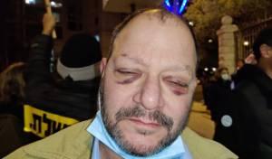 """שוטרים נחקרו בחשד לתקיפת ח""""כ כסיף"""
