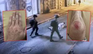 הראיות מהתיק על רקע התקיפה