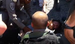 הצעיר שוכב פצוע - אלימות קשה ביצהר: רימוני הלם על מפגינים