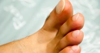 פטרת ציפורניים? אילוסטרציה - המדריך: טיפול אמיתי ומועיל לפטרת הציפורניים