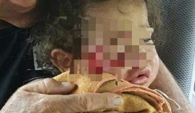 דוד הילד שננשך מנמר: המשפחה בטראומה