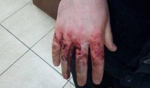 """נדקר על ידי אנטישמים באוקראינה: ידו הפצועה של הלל כהן - יו""""ר הצלה הותקף על ידי אנטישמים"""