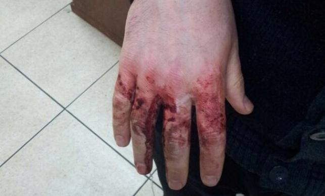 נדקר על ידי אנטישמים באוקראינה: ידו הפצועה של הלל כהן