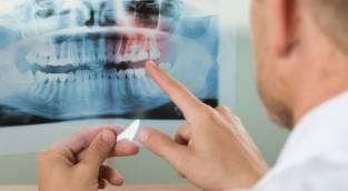 רשלנות בטיפול שיניים?