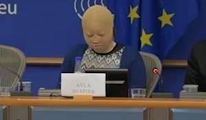 """מול אירופאים: הנערה שנשרפה ע""""י מחבלים"""