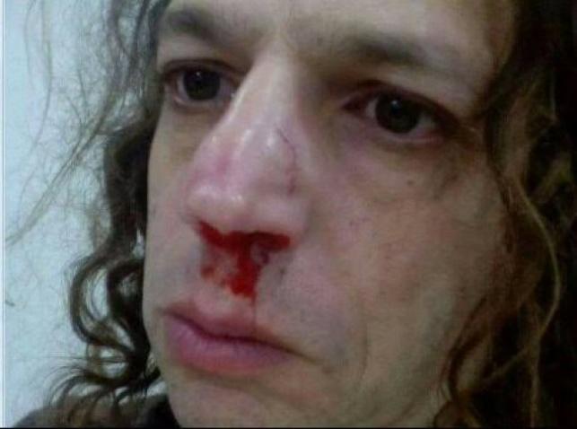 אמיר חצרוני לאחר תקרית קודמת