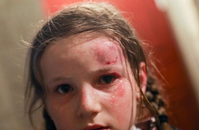 לא יוגש כתב אישום על הפגיעה בילדה זיסל