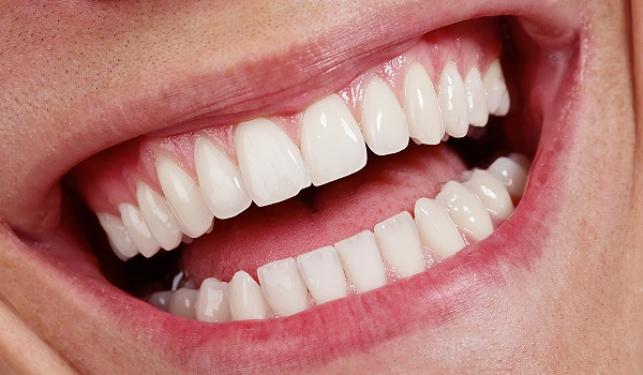 השיטות הטבעיות לשמור על השיניים