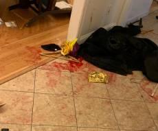 זירת פיגוע הדקירה בבית הרבי במונסי