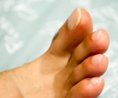 טיפול אמתי ומועיל לפטרת. אילוסטרציה - המדריך: טיפול אמיתי ומועיל לפטרת הציפורניים