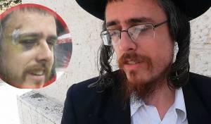החשוד בראיון ל'כיכר השבת', לאחר שהוכה בהפגנה
