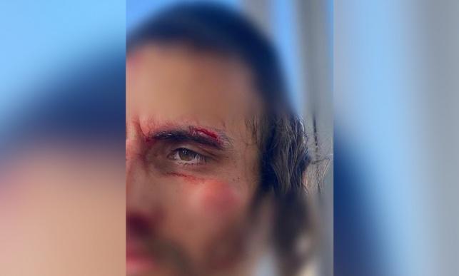 ערבים תקפו חרדי ליד שער שכם; 5 נעצרו