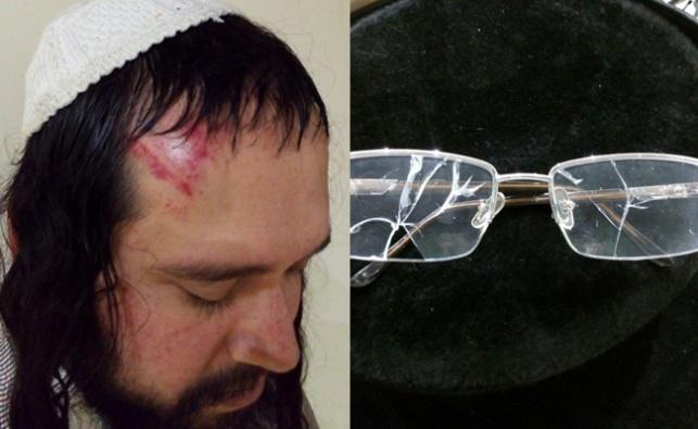הרב פוקס ומשקפיו השבורים