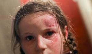 הילדה, לאחר פציעתה