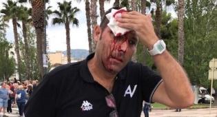 אחד הקטלונים שנפצעו באירועים - דם ברחובות קטלוניה: כדורי גומי על אזרחים