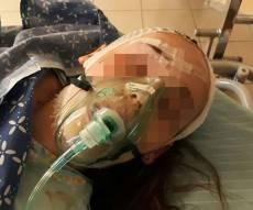 הילדה הפצועה, בבית החולים - כלב רועה גרמני נשך ילדה בפניה; בעליו ברח