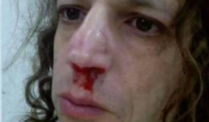 אמיר חצרוני והאף המדמם