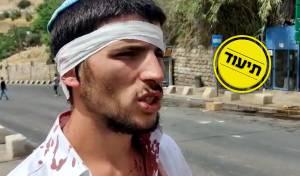 ניצול הלינץ': 'חטפנו, עד ששוטר אחד הציל'