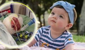 רות ויקטוריה, לפני ואחרי הכוויות