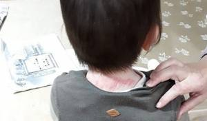 הילד הפצוע לאחר הטיפול הרפואי