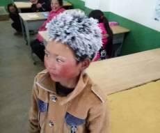 הילד בעל 'שיער השלג' שריגש את הסינים