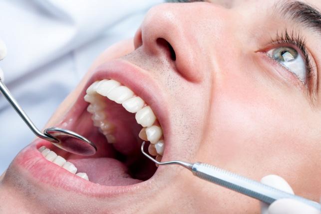 רופא השיניים ביטל את השיק לאחר הפסקת העבודות. אילוסטרציה