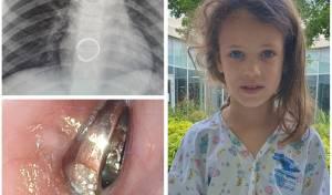 טבעת משובצת נשלפה מגופה של בת 6