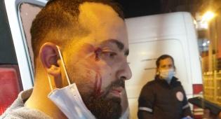 עיתונאי חרדי הוכה באלימות ללא כל סיבה
