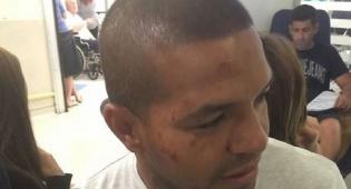 קלאודימיר פריירה בבית החולים לאחר תקיפת השוטרים