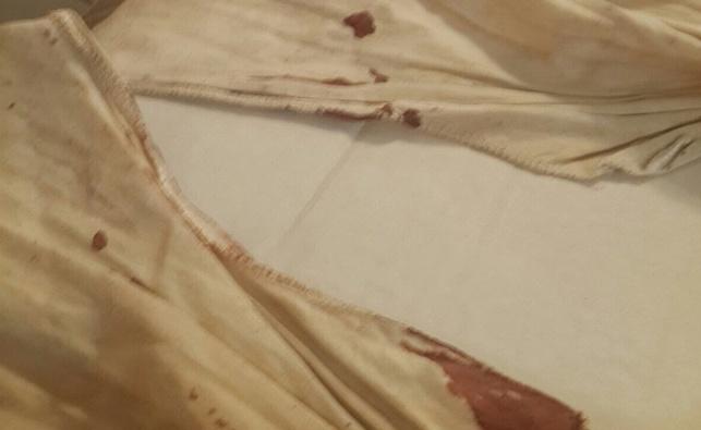 פצוע הפיגוע בעיר העתיקה: הציצית שמרה עליי