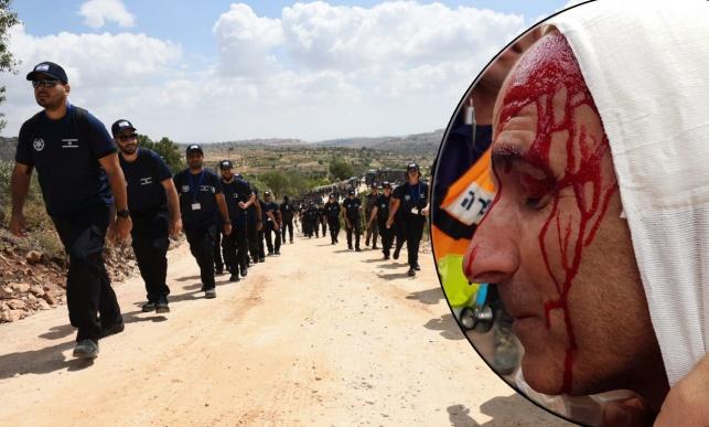 המשטרה: נתקלנו באלימות חמורה • תיעוד