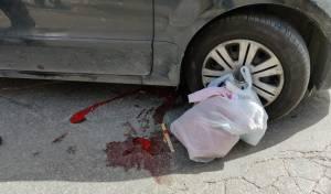 ילדה חרדית כבת 3 נפצעה קשה בתאונה