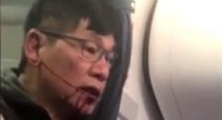 """התיעוד מהאירוע - """"יונייטד"""" פיצתה את הנוסע שנגרר מהטיסה"""