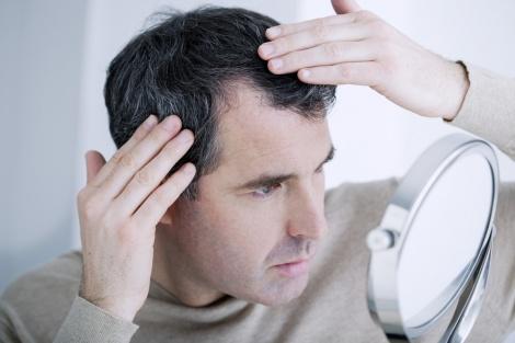 נשירת שיער. אילוסטרציה - נשירת שיער - לטפל בשורש הבעייה בזמן