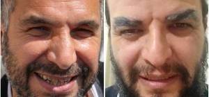 החיקוי של ראש עיריית טבריה רון קובי • צפו